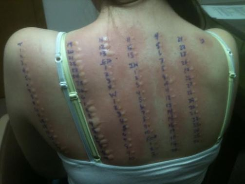 """The doctors said they had never seen someone with allergy testing results like mine. They knew something was wrong."""